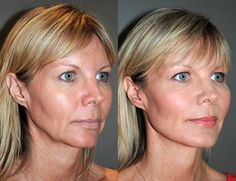 Skin rejuvenation in Toronto