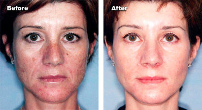 before and after skin rejuvenation 1