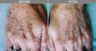 before and after skin rejuvenation hand