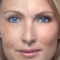 Wrinkle Removal in Toronto