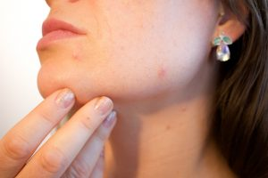 5 types of skin spots and what they mean