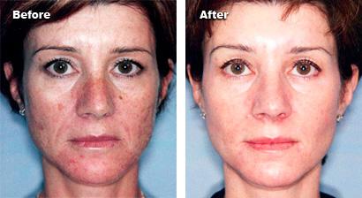 before and after skin rejuvenation 1