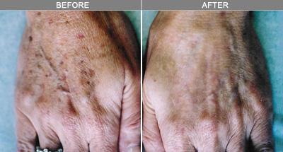 before and after skin rejuvenation hand