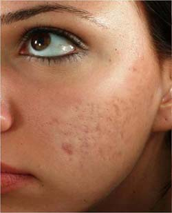 laser acne scar removal treatment toronto