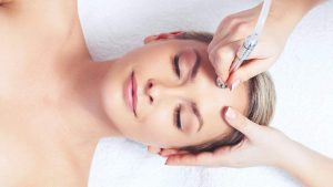 What to Expect - Microdermabrasion